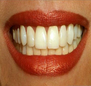 teeth-stem-cells